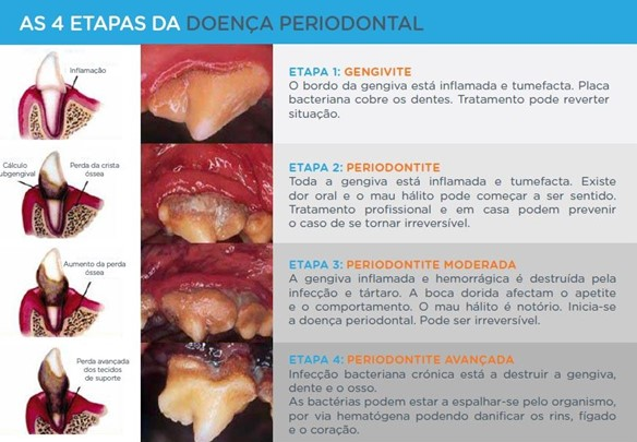 As 4 etapas da doença periodontal